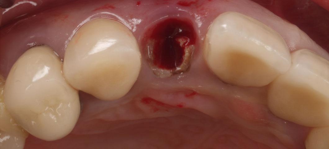 歯牙再植術